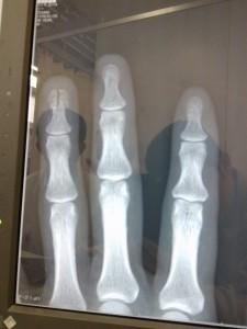 指骨折(正面から)